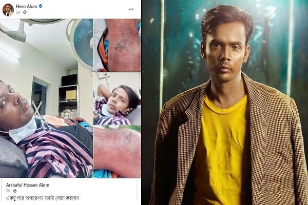 অসুস্থ হয়ে হাসপাতালে ভর্তি: অপারেশন সম্পন্ন হিরো আলমের