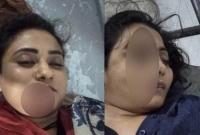 সড়ক দু'র্ঘটনায় মহাখালীতে দুই নারী নিহ'ত, এখনও পরিচয় জানা যায়নি