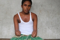 পল্লী-বিদ্যুতের-লাইন-মেরামতের-কাজ-করতে-গিয়ে-২-হাত-হারিয়ে-ডুকরে-ডুকরে-কাঁদছেন-সাব্বির