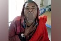 ১০০-টাকা-বাজি-ধরে-গরম-চা-গিলে-হাসপাতালে-যুবক-