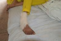 ভালোবেসে-বিয়ে-৫-বছর-পর-স্ত্রীর-পায়ের-রগ-কাটলেন-স্বামী-